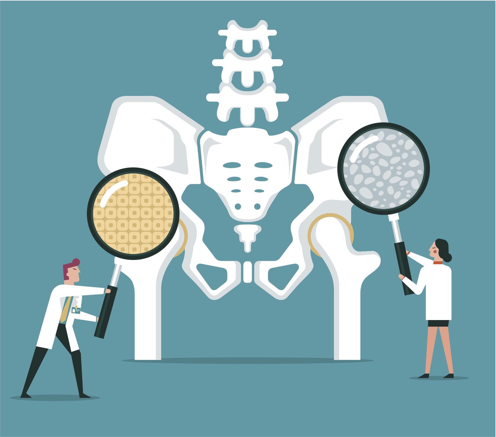 Huesos osteoporosis gente silver